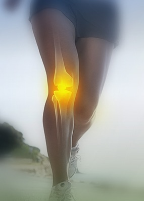 Knee Replacement Melbourne - Find out what you need to know?